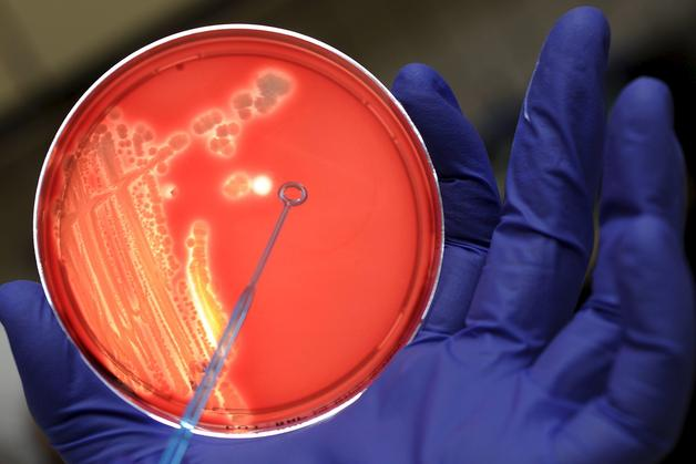 Foto de archivo. Bacterias en cultivo.EFE/MARIUS BECKER